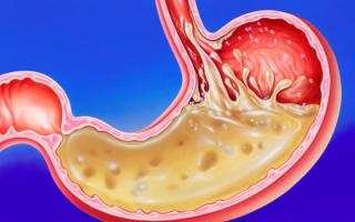 Особенности течения рефлюкс – гастрита, клиническая симптоматика, диагностика и лечение