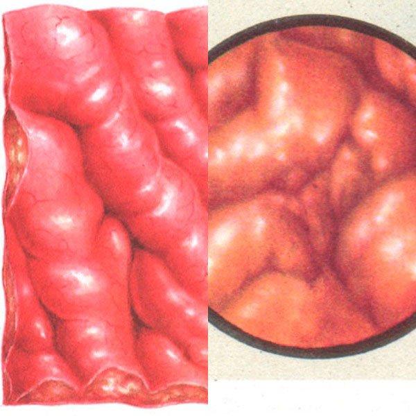 Флегмонозный и гипертрофический гастрит