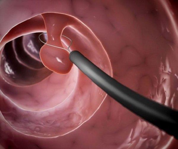 Операция по удалению полипов в желудке