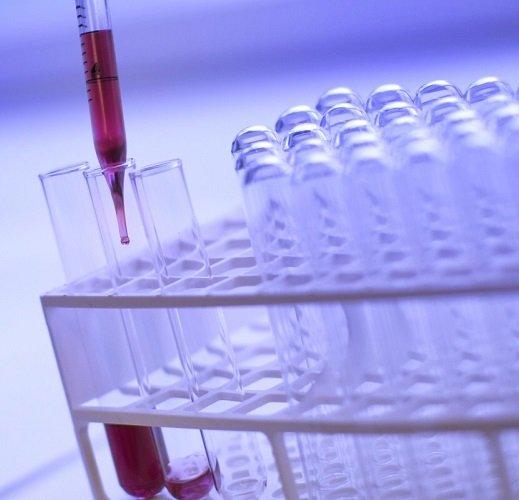 Анализ крови в диагностики катарального гастрита