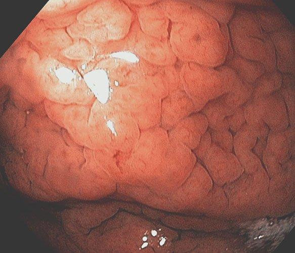 Гиперпластический гастрит
