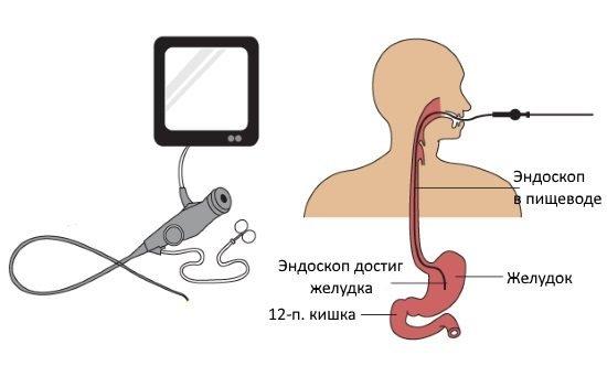 Проведение гастроскопии, схема расположения эндоскопа