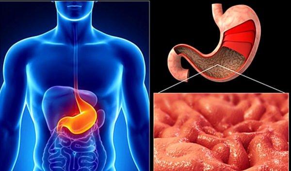 Показания к гастроскопии, гастриты, язвы, онкологические заболевания