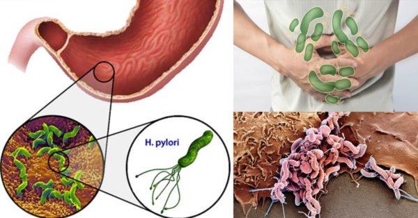 Основная причина гастродуоденита - это бактерия Helicobacter pylori