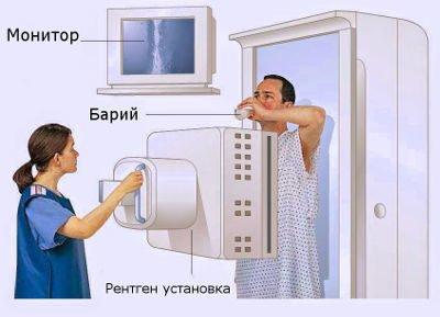 Проведение рентгеноскопии желудка