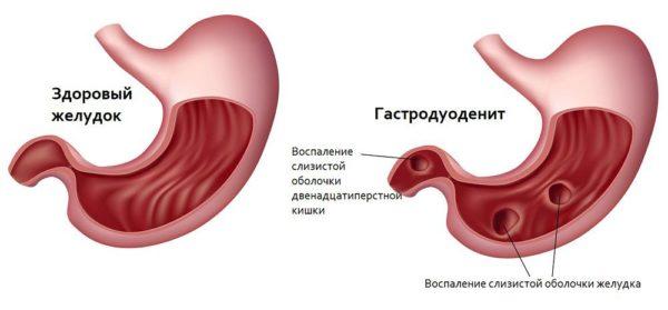 Что такое гастродуоденит